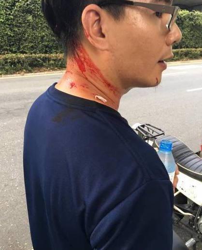 在台大體育場外遭統促黨持甩棍攻擊的學生。(翻攝畫面)