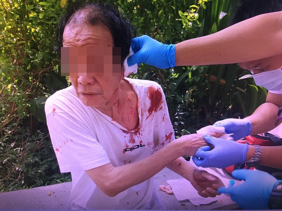 遭攤商老闆砍傷左耳的72歲張姓民眾。(警方提供)